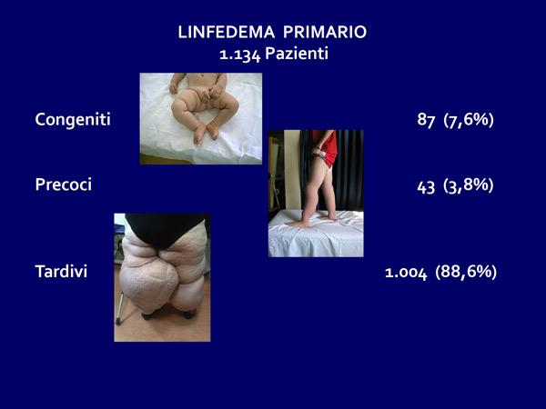 linfedemaprimario1